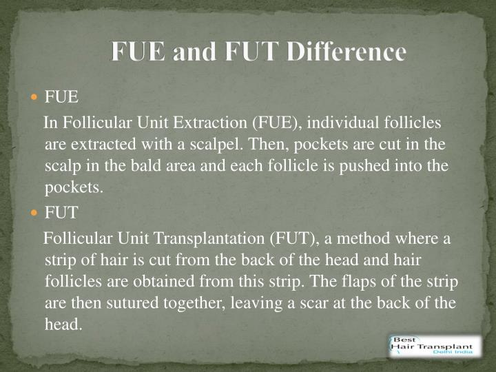 FUE and FUT Difference