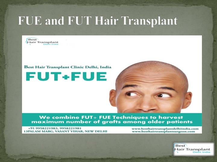 FUE and FUT Hair Transplant