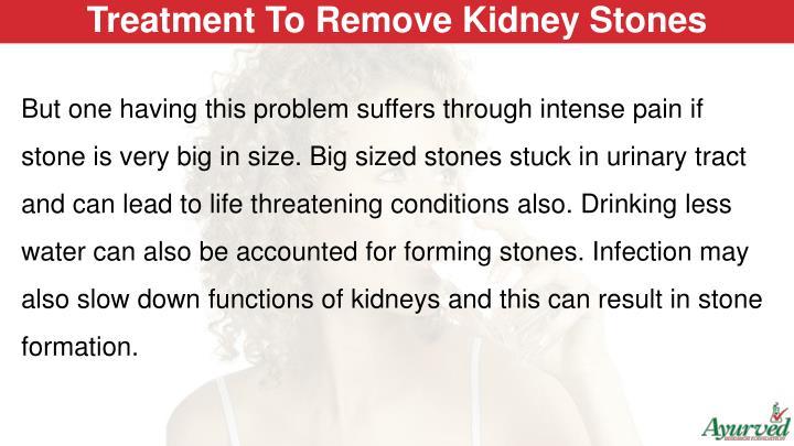Treatment To Remove Kidney Stones