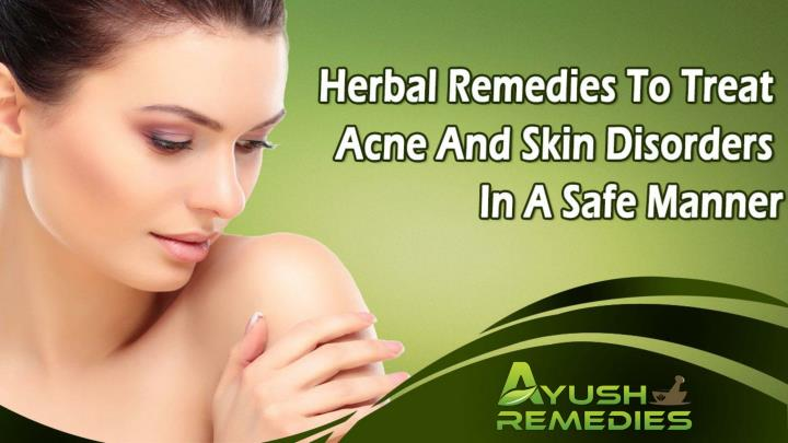 Herbal remedies to treat acne and skin disorders in a safe manner