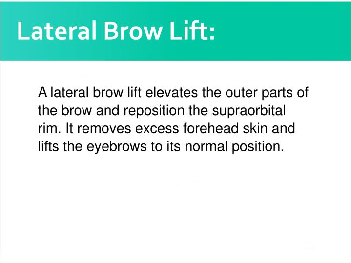 Lateral Brow Lift: