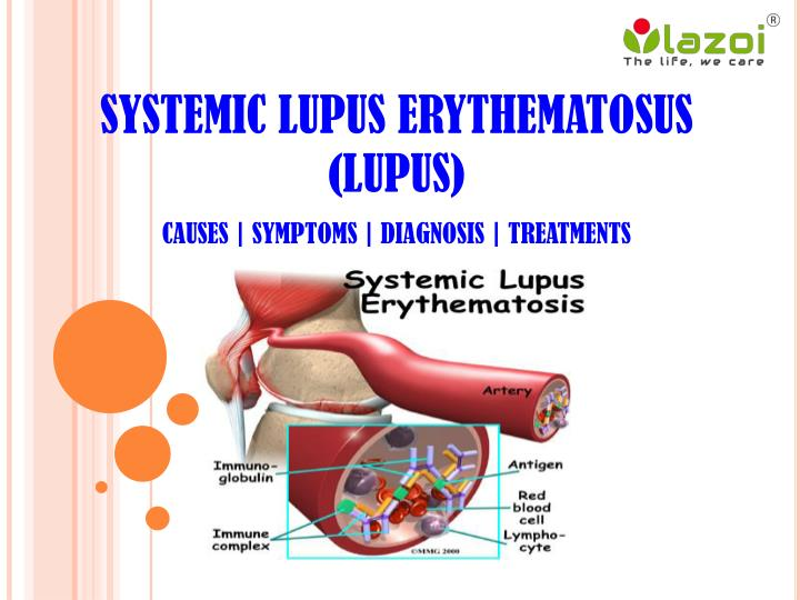 whats systemic lupus erytematosus essay