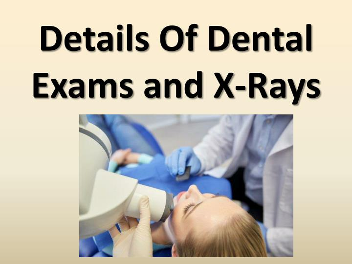 details of dental exams and x rays