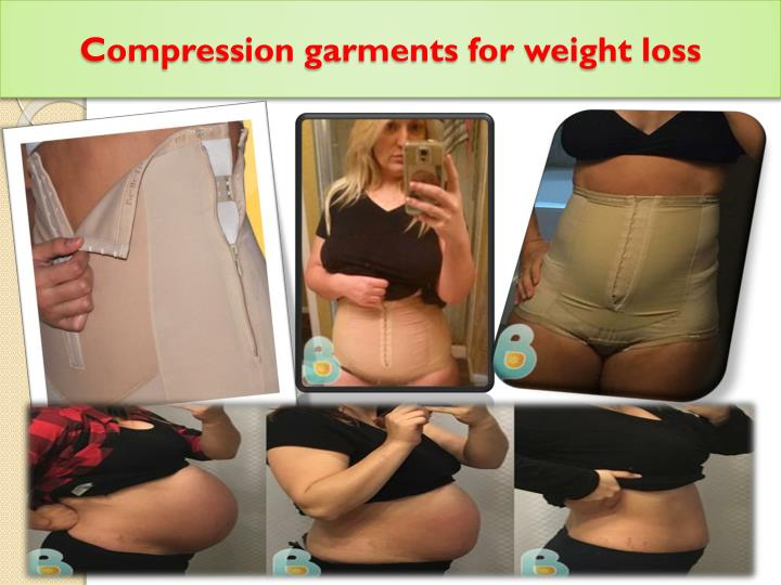 Compression garments for weight loss