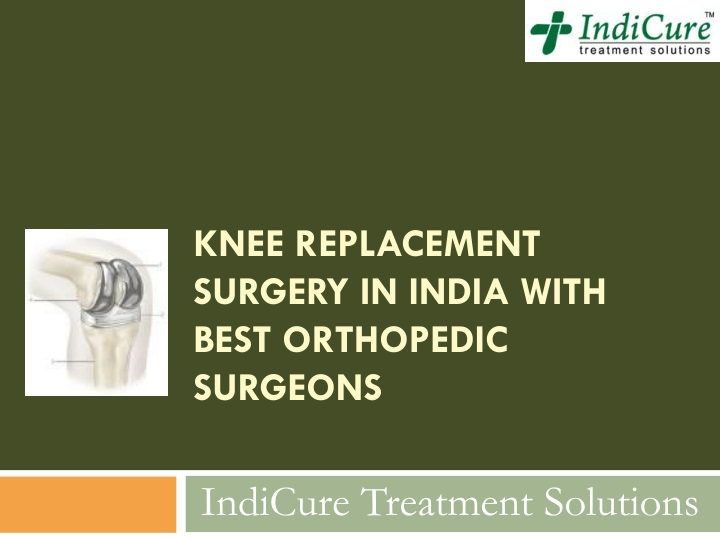 knee replacement surgery in india with best orthopedic surgeons n.