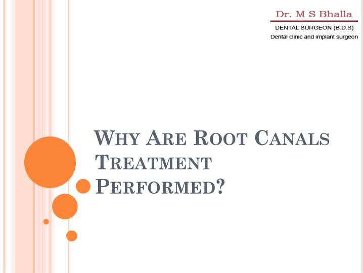 why are root canals treatment performed n.