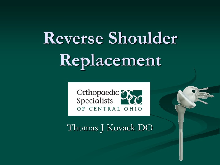 reverse shoulder replacement n.