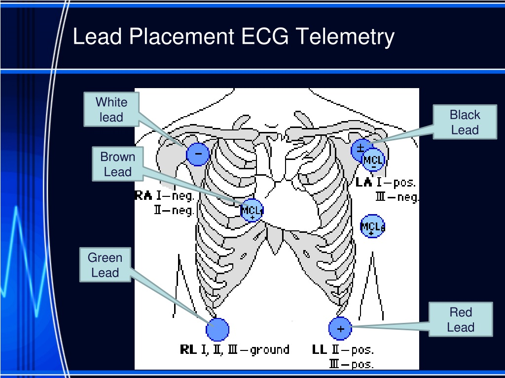 Placement telemetry monitoring lead Elsevier