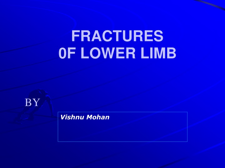fractures 0f lower limb n.