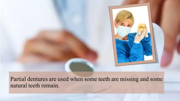 Partial dentures are used when some teeth are missing and some natural teeth remain.