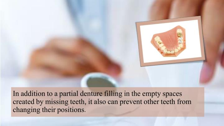 In addition to a partial denture filling in the empty spaces created by missing teeth, it also can prevent other teeth from changing their positions.