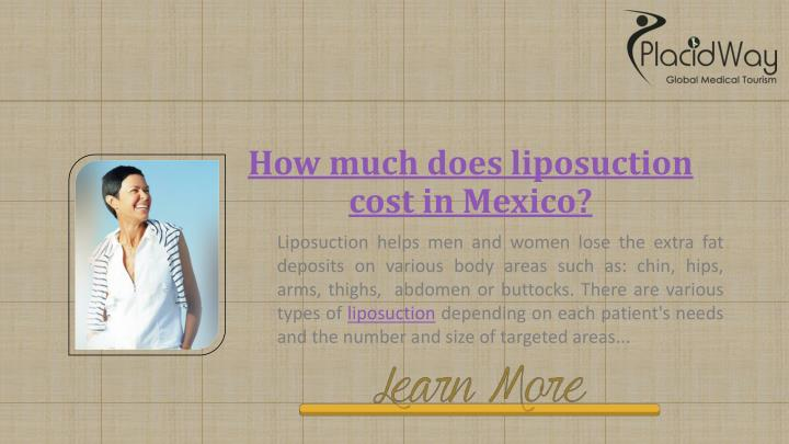 How much does liposuction cost in