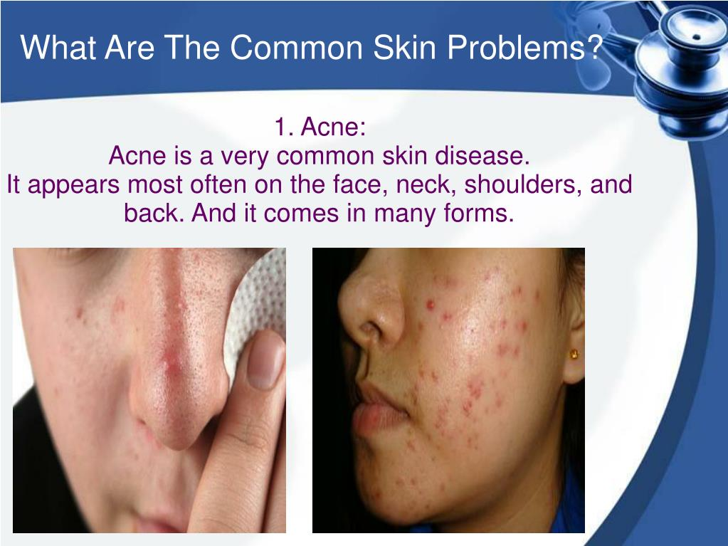 Common skin diseases ppt