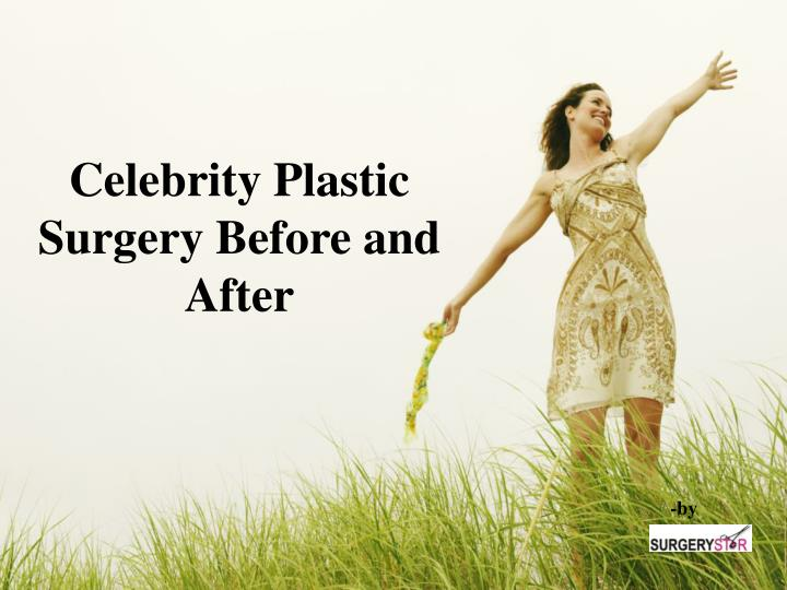 celebrity plastic surgery before and after n.