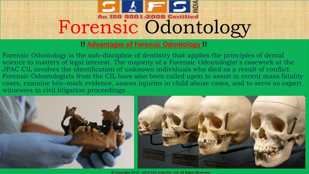 Ppt Advance Courses Of Forensic Odontology In Sifs India Powerpoint Presentation Id 7161383
