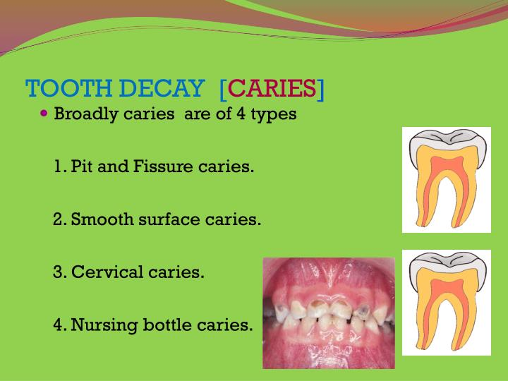 Tooth decay caries
