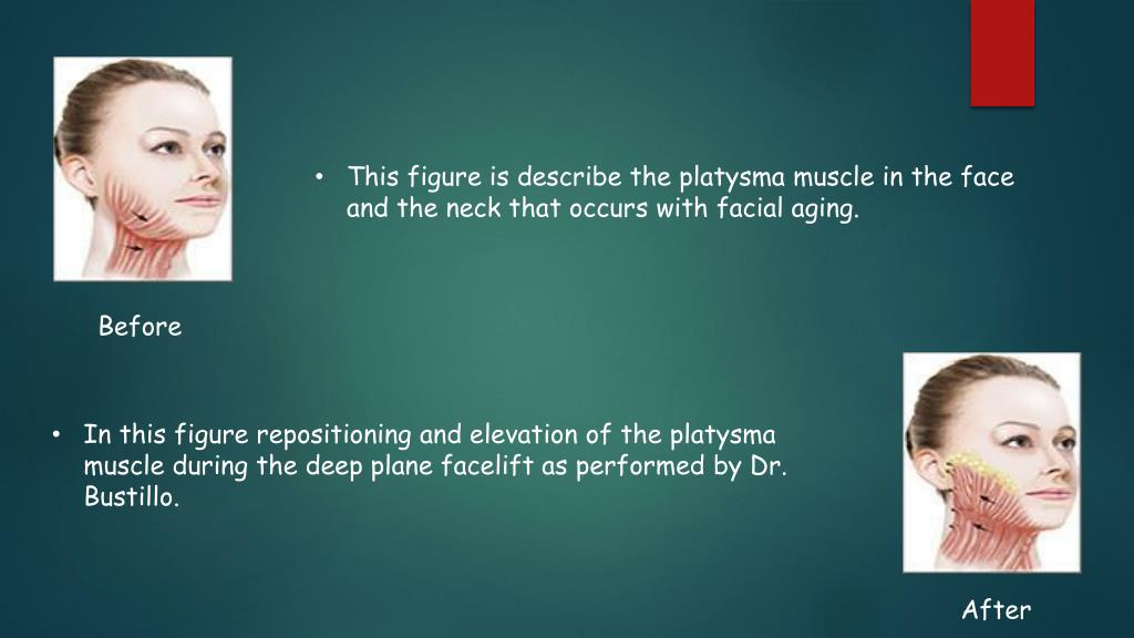 PPT - Facelift PowerPoint Presentation - ID:7176630