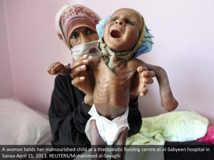A woman holds her malnourished child at a therapeutic feeding centre at al-Sabyeen hospital in Sanaa April 15, 2013. REUTERS/Mohammed al-Sayaghi