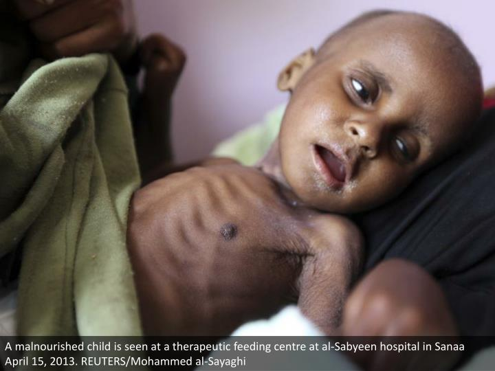 A malnourished child is seen at a therapeutic feeding centre at al-Sabyeen hospital in Sanaa April 15, 2013. REUTERS/Mohammed al-Sayaghi