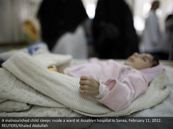 A malnourished child sleeps inside a ward at Assabiyn hospital in Sanaa, February 11, 2012. REUTERS/Khaled Abdullah