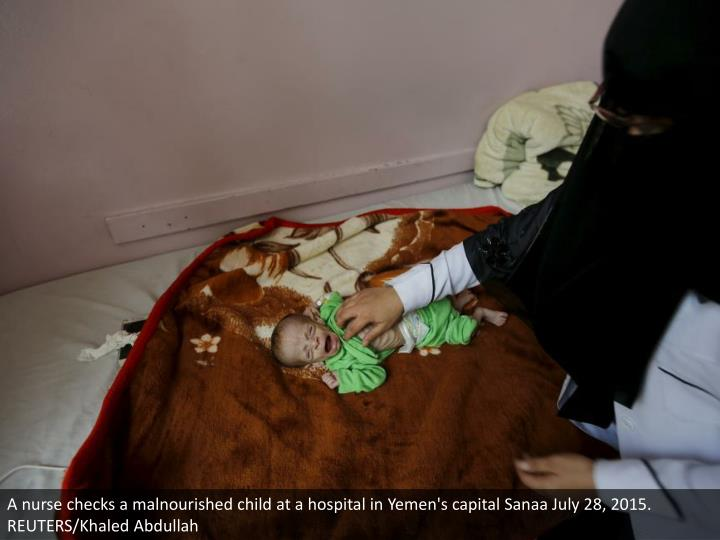A nurse checks a malnourished child at a hospital in Yemen's capital Sanaa July 28, 2015. REUTERS/Khaled Abdullah