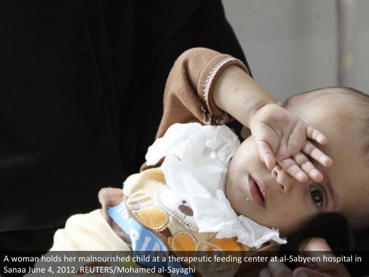 A woman holds her malnourished child at a therapeutic feeding center at al-Sabyeen hospital in Sanaa June 4, 2012. REUTERS/Mohamed al-Sayaghi