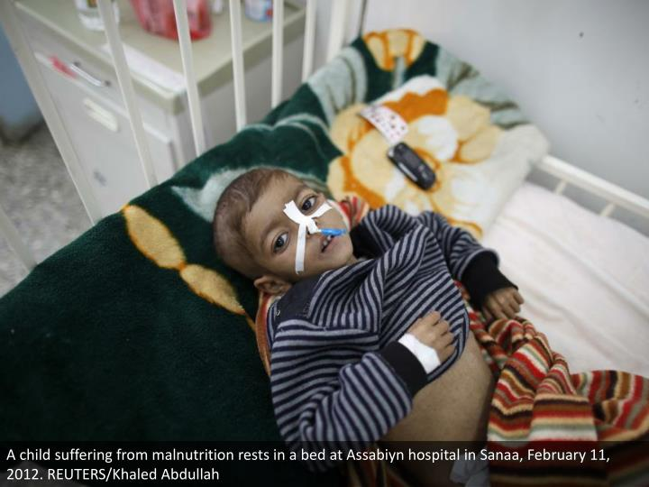 A child suffering from malnutrition rests in a bed at Assabiyn hospital in Sanaa, February 11, 2012. REUTERS/Khaled Abdullah