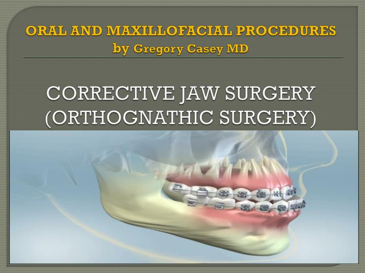 oral and maxillofacial procedures by gregory casey md corrective jaw surgery orthognathic surgery n.