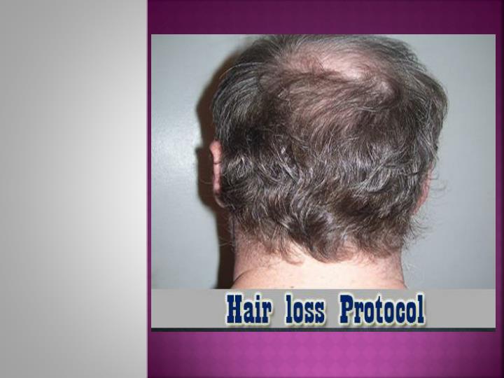 Hair loss protocol system