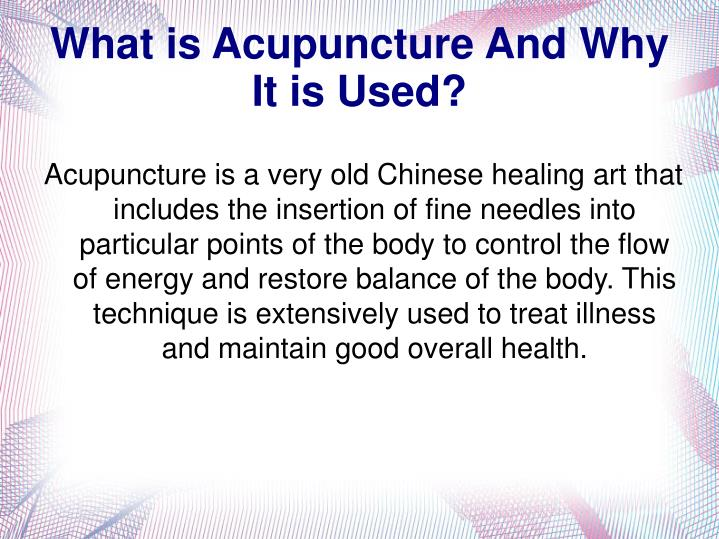 what is acupuncture and why it is used n.