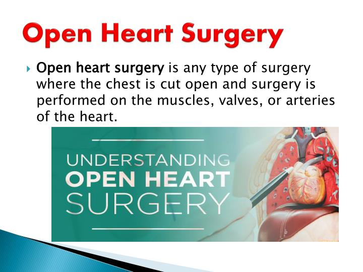 open heart surgery essay Dr alexander marmureanu is one of the most successful and experienced heart surgeons in california, having over 20 years of experience and performing more than 400 surgeries annually dr marmureanu's medical expertise, as a thoracic and cardiovascular surgeon.