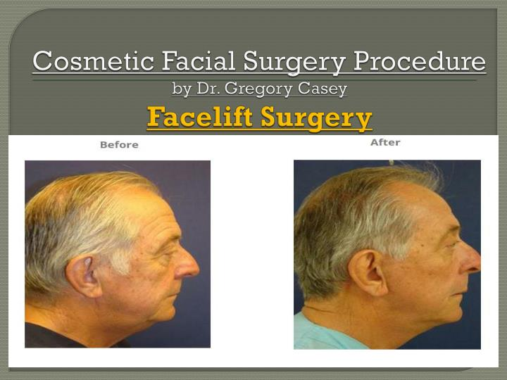 cosmetic facial surgery procedure by dr gregory casey facelift surgery n.