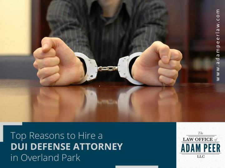 top reasons to hire a dui defense attorney in overland park n.
