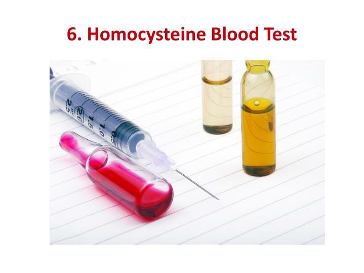 6. Homocysteine Blood Test