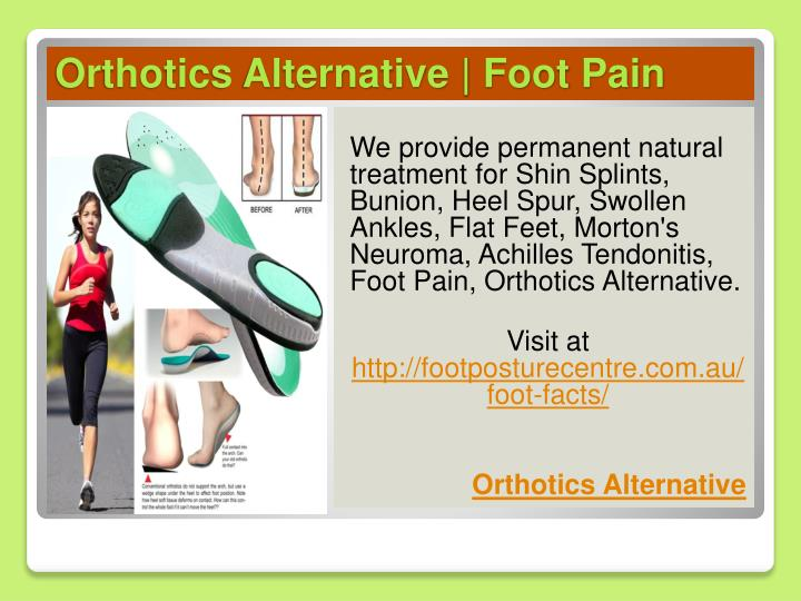 orthotics alternative foot pain n.