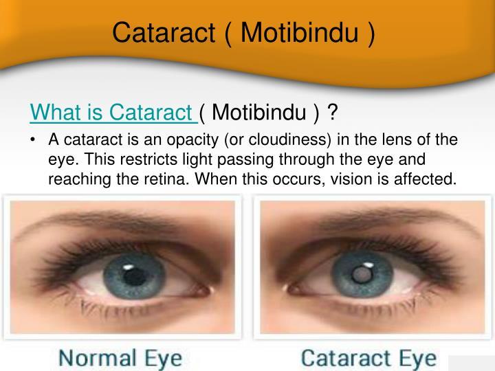 Ppt Cataract Surgery Asian Eye Hospital Powerpoint