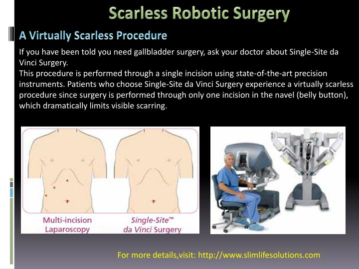 Scarless Robotic Surgery