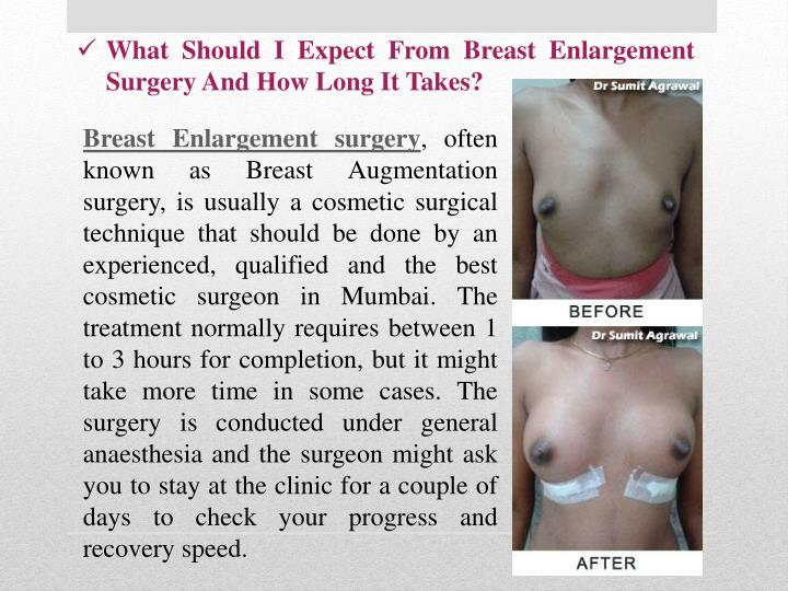 What Should I Expect From Breast Enlargement Surgery And How Long It Takes?