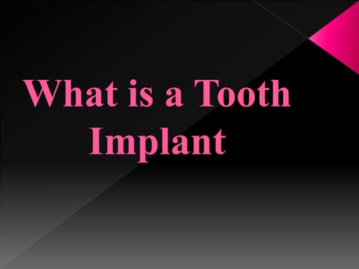 what is a tooth implant n.