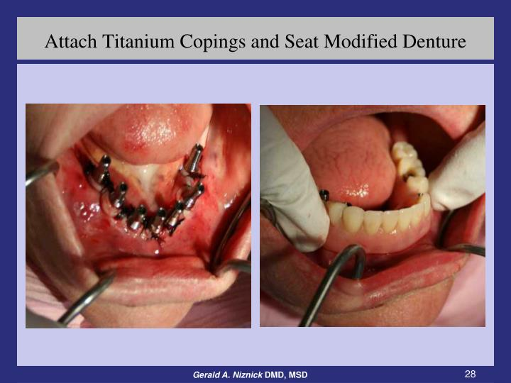 Attach Titanium Copings and Seat Modified Denture