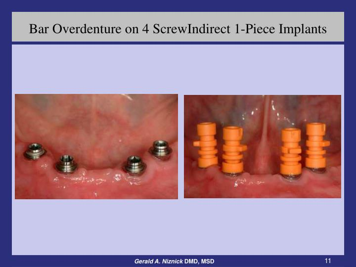 Bar Overdenture on 4 ScrewIndirect 1-Piece Implants