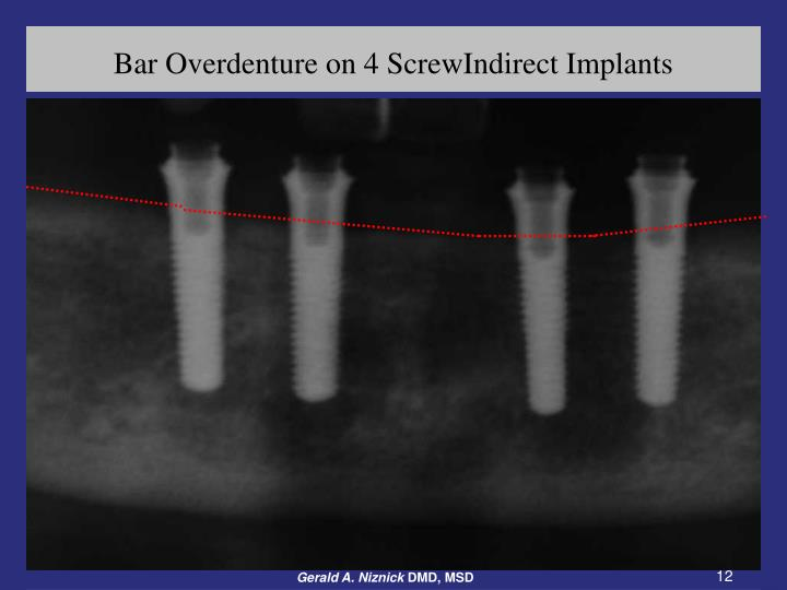 Bar Overdenture on 4 ScrewIndirect Implants