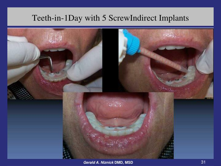 Teeth-in-1Day with 5 ScrewIndirect Implants
