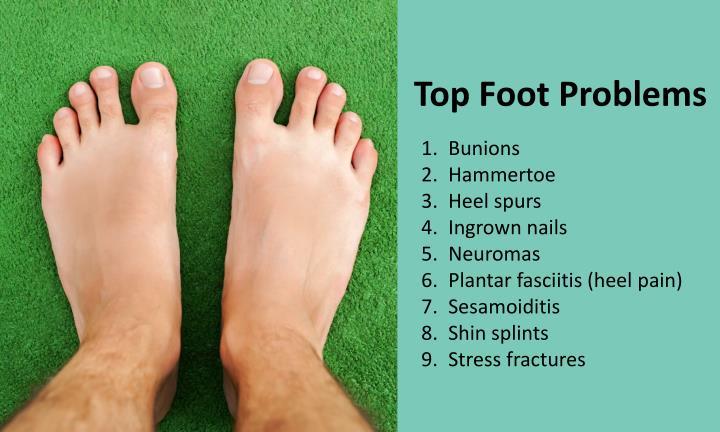 Top Foot Problems