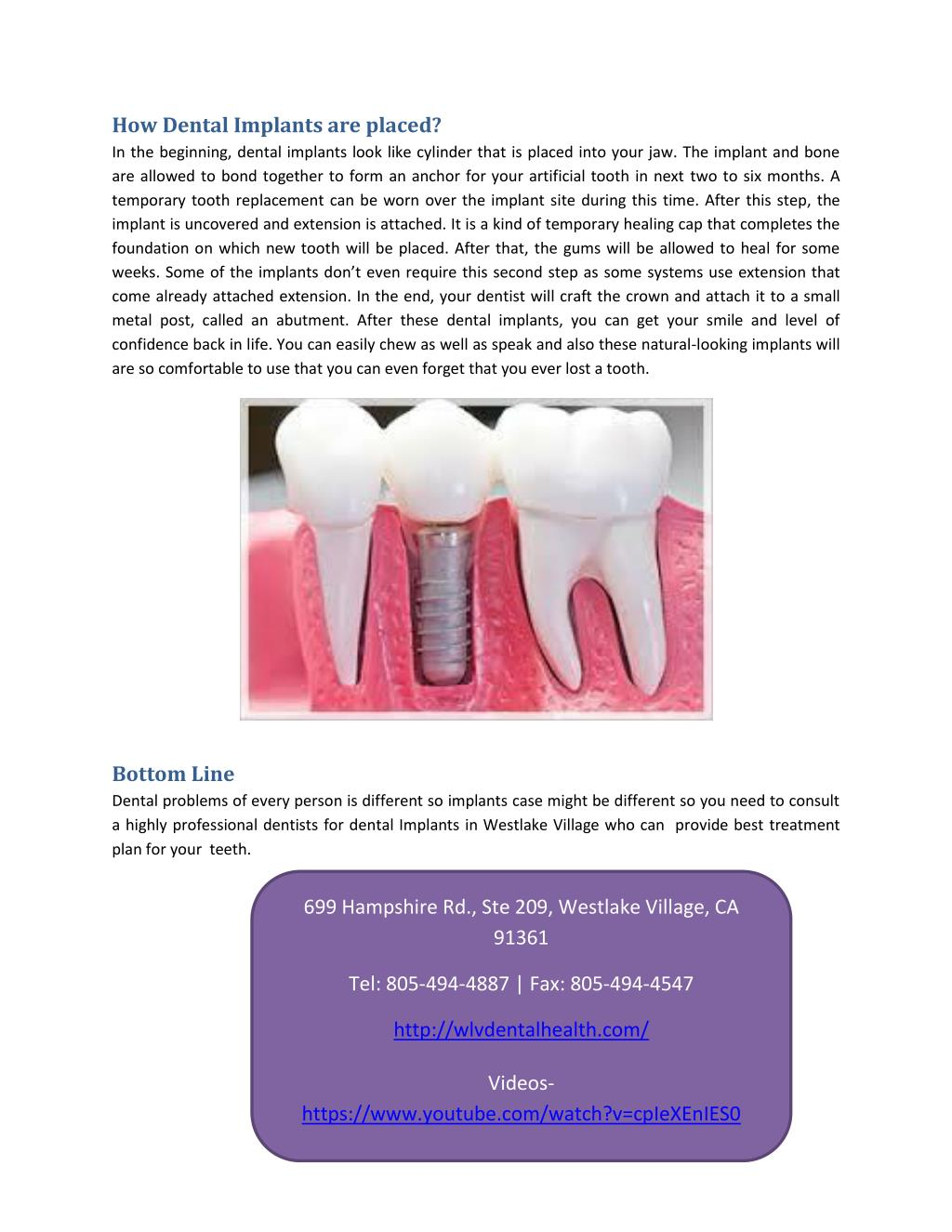 Ppt Know More About Dental Implants Powerpoint