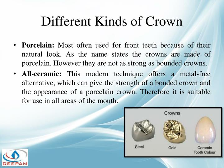 Different Kinds of Crown