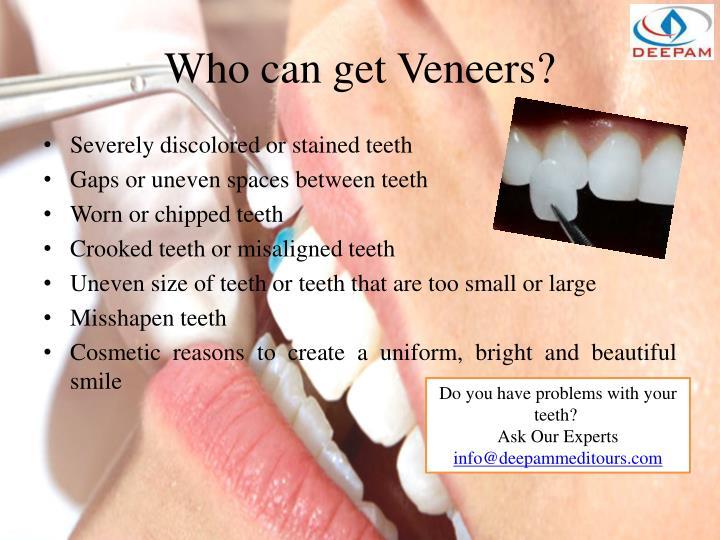 Who can get veneers