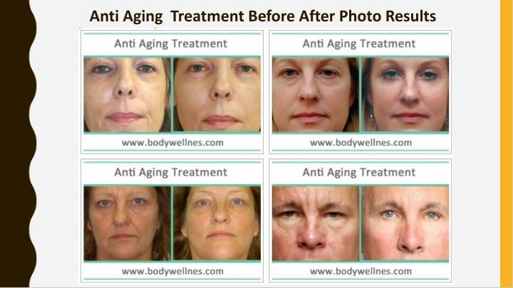 Anti Aging  Treatment Before After Photo Results