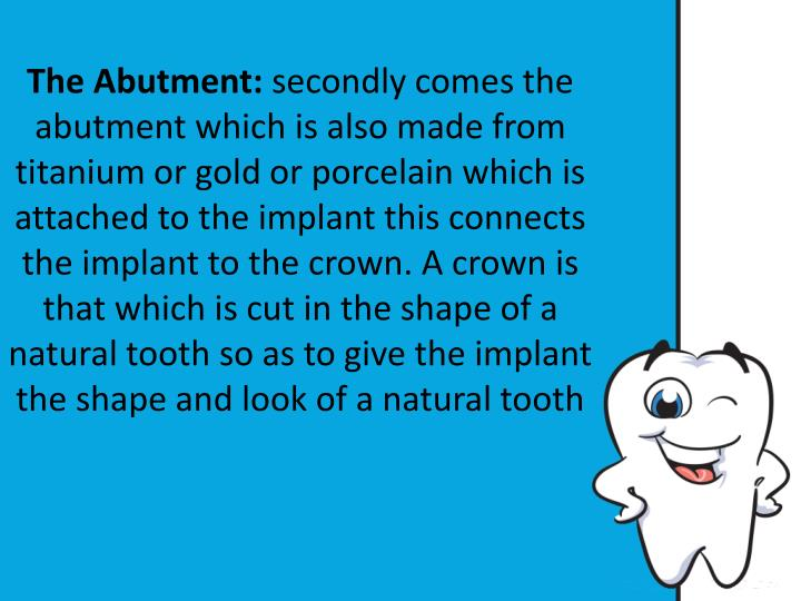 The Abutment: