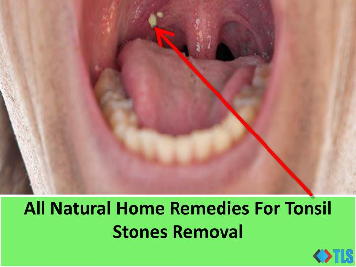 PPT - All Natural Home Remedies For Tonsil Stones Removal
